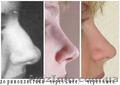 Ринопластика - изменение формы и размера носа.